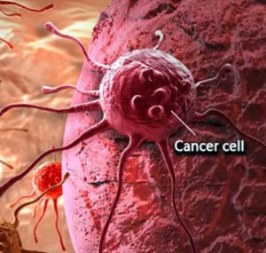 Cancer is the 7th stage of the 7 stages of disease progression